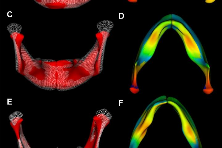 computer visualization of mandible